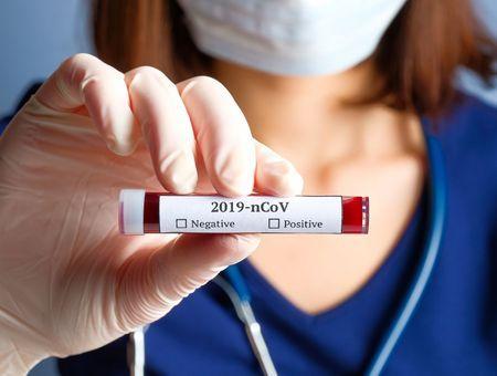 Covid 19 : symptômes par ordre d'apparition, tests, traitement