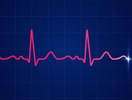 Fibrillation atriale : quel suivi médical et quel quotidien pour les patients ?