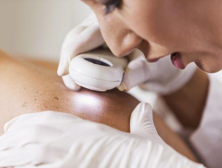 Le molluscum contagiosum : une maladie de peau sans gravité mais contagieuse