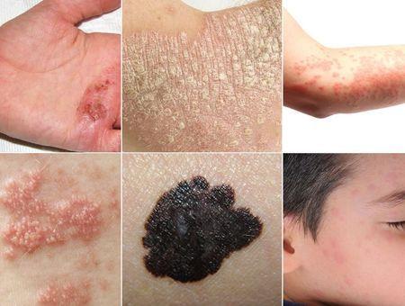 Distinguer les maladies de peau en images