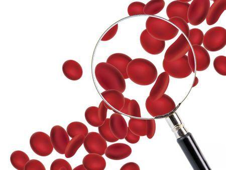 Anémie : 8 conseils pour y remédier