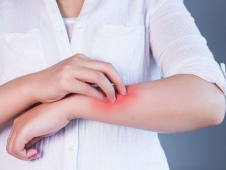 Mycoses de la peau : symptômes et traitements
