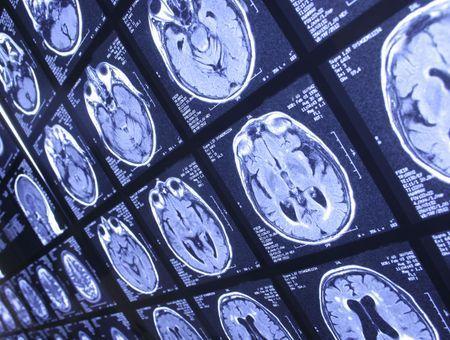 Coronavirus : une atteinte du cerveau et des effets neurologiques à long terme selon deux études