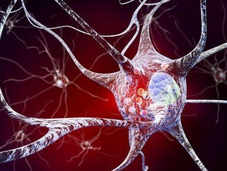Maladie de Parkinson. Les origines et facteurs de risques possibles