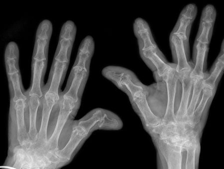 Polyarthrite rhumatoïde : quand recourir à la chirurgie ?