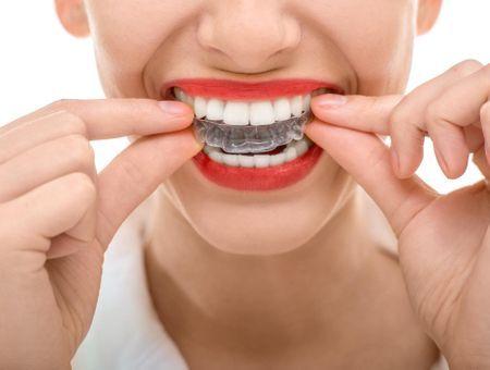 Appareil dentaire pour adulte : indication, prix, douleur, invisibilité