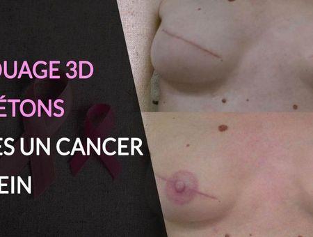 Le tatouage 3D de reconstruction après un cancer du sein