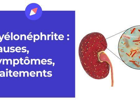 Pyélonéphrite : une infection grave du rein