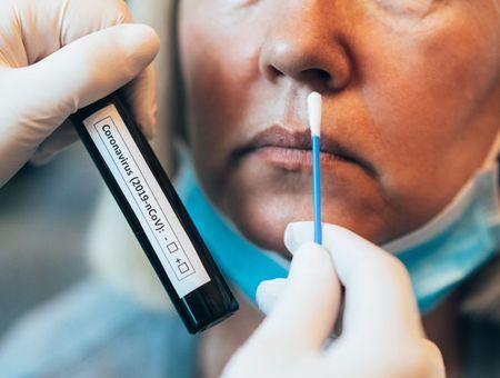 Test PCR ou sérologique : quelles sont les différences ?