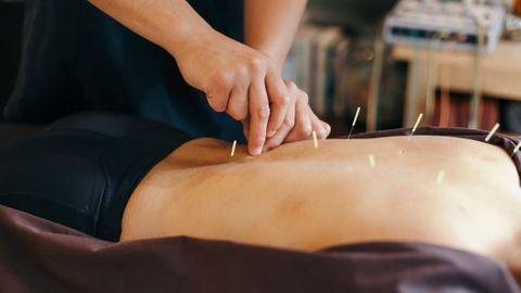 Les choses à faire ou ne pas faire après une séance d'acupuncture