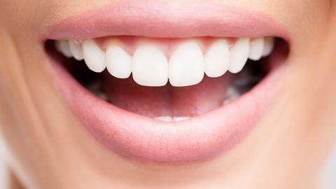 Astuces pour avoir les dents blanches