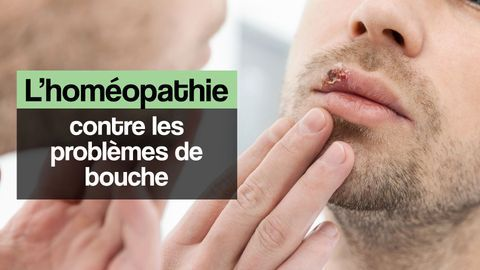 aphte homeopathie