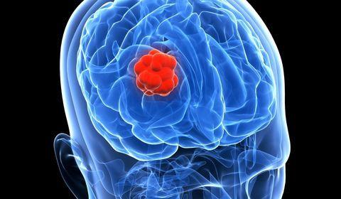 gliome cancer cerveau