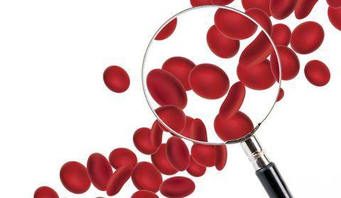 conseils corriger anemie