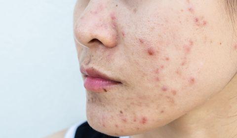 Encore trop de grossesses exposées aux traitements contre l'acné à base d'isotrétinoïne