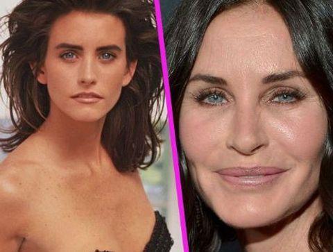 Courteney Cox - Stars : les pires ratés de la chirurgie esthétique !