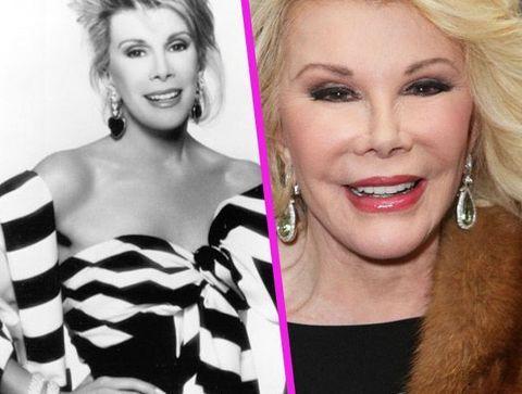 Joan Rivers - Stars : les pires ratés de la chirurgie esthétique !