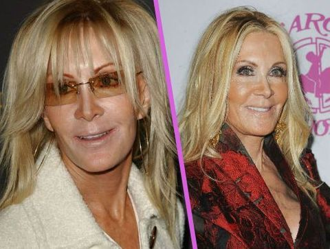 Joan Van Ark - Stars : les pires ratés de la chirurgie esthétique !