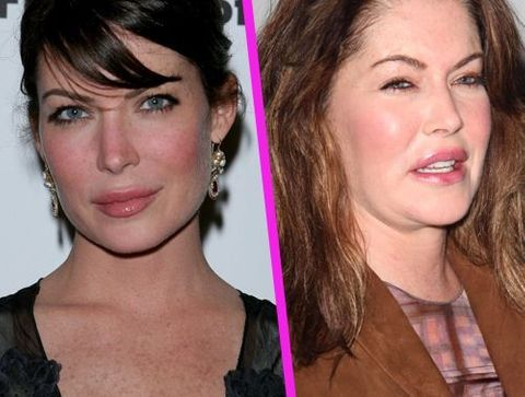 Lara Flynn Boyle - Stars : les pires ratés de la chirurgie esthétique !