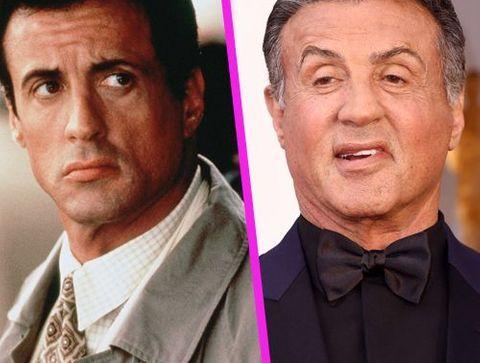 Sylvester Stallone - Stars : les pires ratés de la chirurgie esthétique !