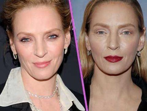Uma Thurman - Stars : les pires ratés de la chirurgie esthétique !