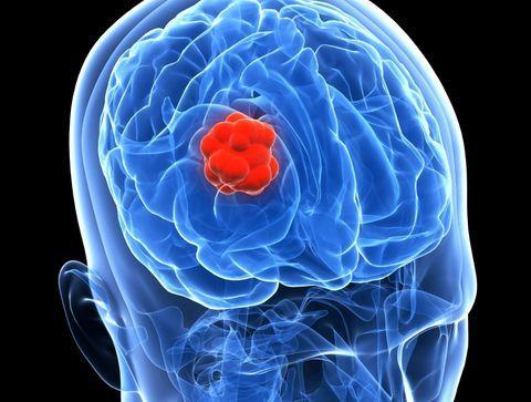 La chimiothérapie bénéfique pour certains cancers rares du cerveau