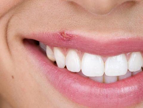 10 conseils pour faire disparaître rapidement un bouton de fièvre