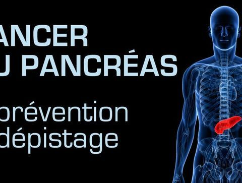 Cancer du pancréas : prévention et dépistage