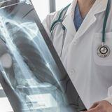 Cancer du poumon muté EGFR : l'osimertinib réduit le risque de récidive