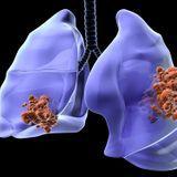Les types et les stades de cancer du poumon