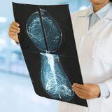 IRM mammaire : comment elle se déroule ? Quand la faire ?