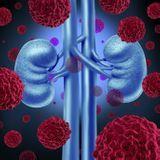 Quels sont les traitements d'un cancer du rein ?