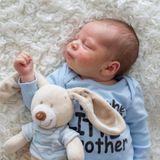Dermatite atopique du nourrisson : protéger la peau de bébé