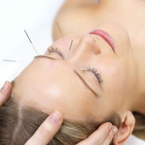 Un soin lifting par l'acupuncture