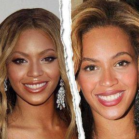Le nez refait de Beyoncé