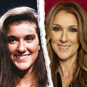 Le nez refait de Céline Dion