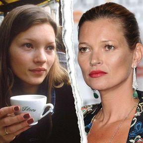 Le nez refait de Kate Moss