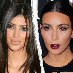 Le nez refait de Kim Kardashian