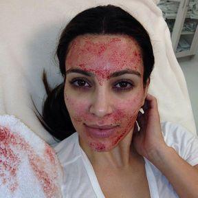Le vampire lift de Kim Kardashian