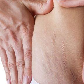 Peau (vergetures) après la grossesse