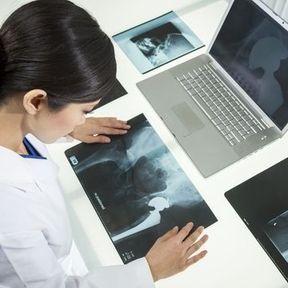 Fracture de la hanche
