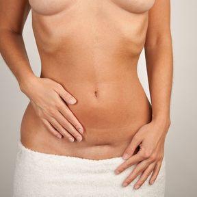 Douleur au niveau de la cicatrice de césarienne