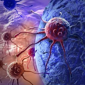 Le cancer du côlon, du foie ou de l'ovaire