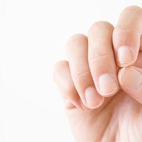Des ongles en forme de cuillère