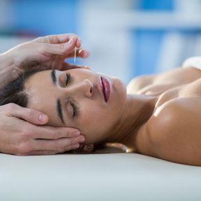 Tester l'acupuncture, l'acupression et le shiatsu