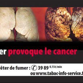 Fumer provoque le cancer mortel du poumon