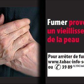Fumer provoque un vieillissement de la peau