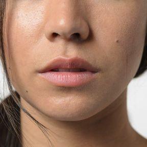 Un sifflement permanent du nez
