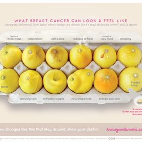 """Campagne """"know your lemons"""""""