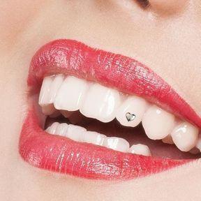 Un bijou de dent